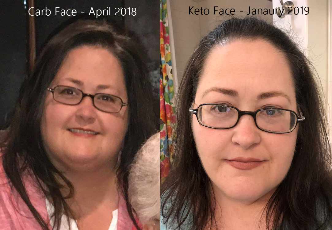 my ketogenic diet journey to health